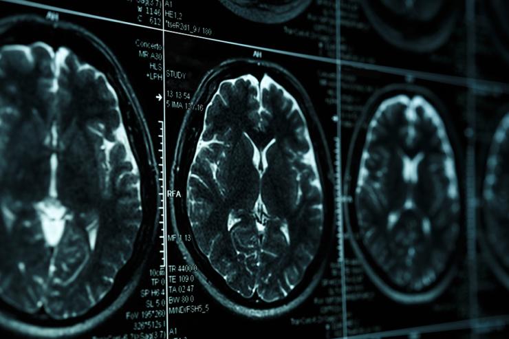 Neuroscience of selling